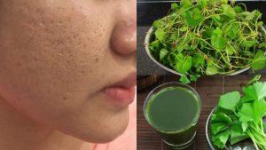 Sử dụng rau má trị sẹo rỗ